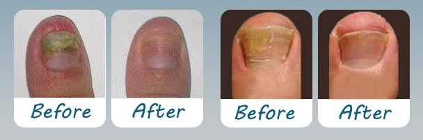 Funginix before and after